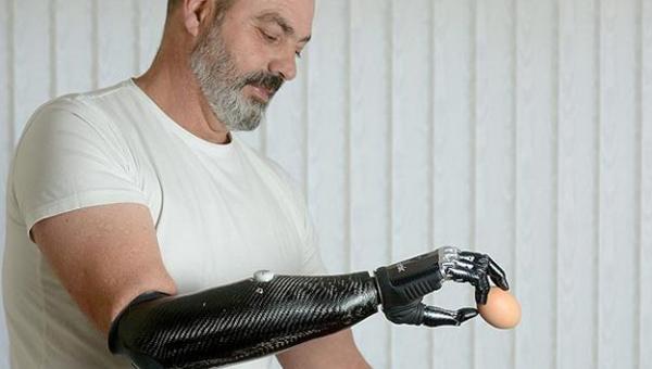 protesis-de-mano