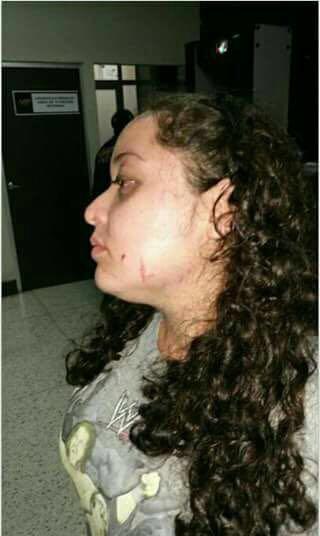 Estudiante víctima del incidente